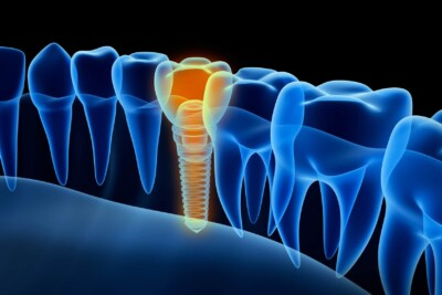 A dental implant viewed in x-ray, find out more at Marzban DDS in Burke Virginia