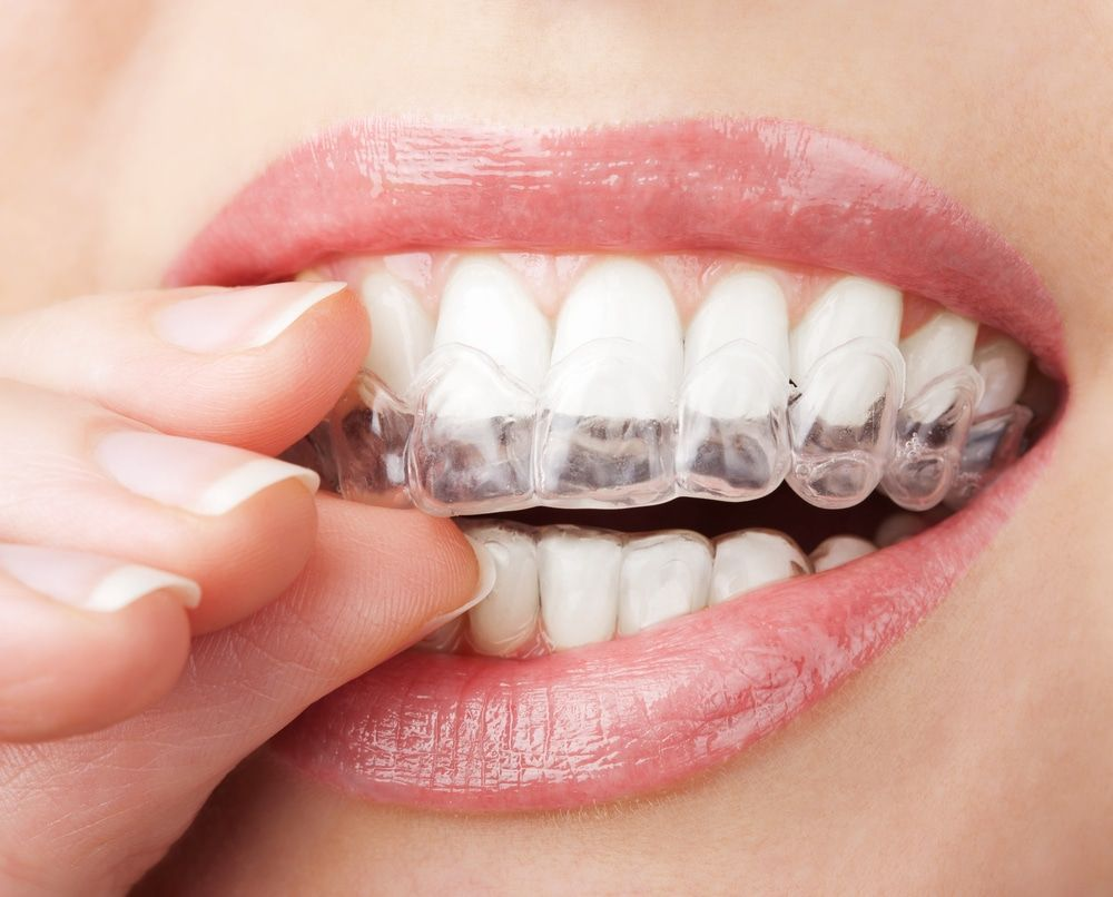 "To learn how invisible braces can help enhance and strengthen your smile, call Fairfax dentist Dr. Pamela Marzban at <a href=""tel:7033494277"" >703-349-4277</a> and schedule a consultation today"