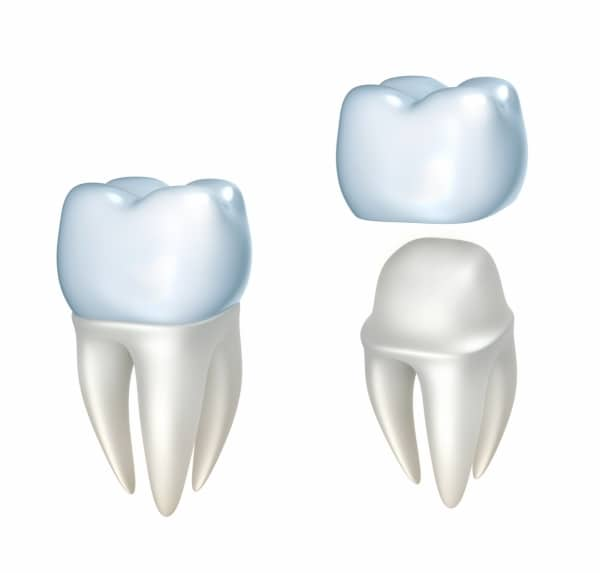 Dental Crowns - Fairfax Dentist - Dr. Pamela Marzban