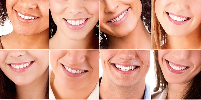 Teeth Whitening Gets Rid of Spots | Burke, VA