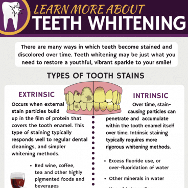 Learn more about Teeth Whitening.